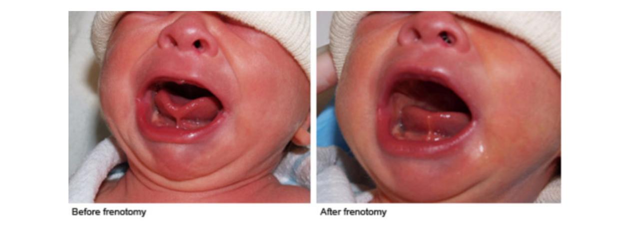 Frenotomy - tongue tie treatment